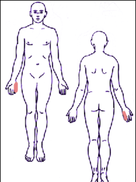 Trapezius Pain Referral Pattern ?