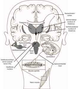 cervical vertigo, cervicogenic dizziness